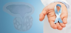 Prostatos vezys