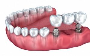 Dantys ant implantų